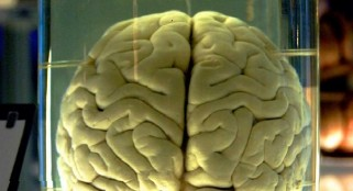 Brains missing from University of Texas collection likely destroyed
