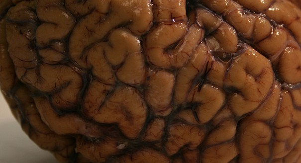 Rare, fatal brain disease confirmed in New Hampshire patient