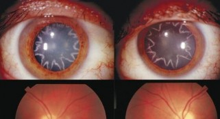 After electrical shock, man has star-shaped cataracts