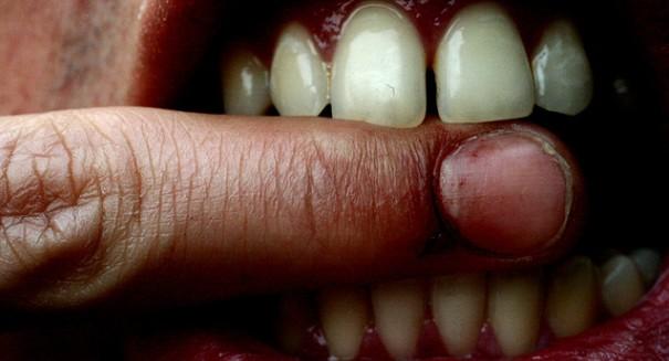 Rehab center to Ke$ha fans: Stop sending human teeth