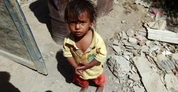 yemen-famine